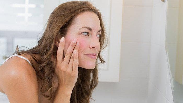 Find the reason for your Rosacea flares-min